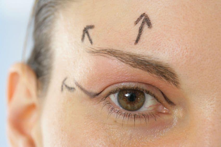 Chirurgie paupières laser tarif